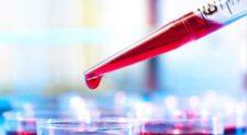 Στην Αυστραλία η πρώτη εξέταση αίματος για τη διάγνωση του μελανώματος